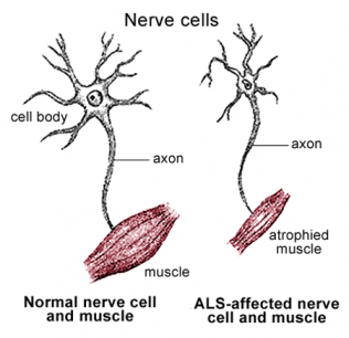 motor neuron disease treatment in ayurveda i neurological