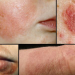 eczema and its ayurvedic treatment